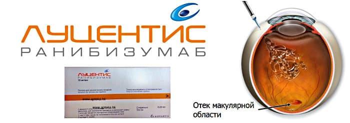 Луцентис - цена уколов в глаза в Москве