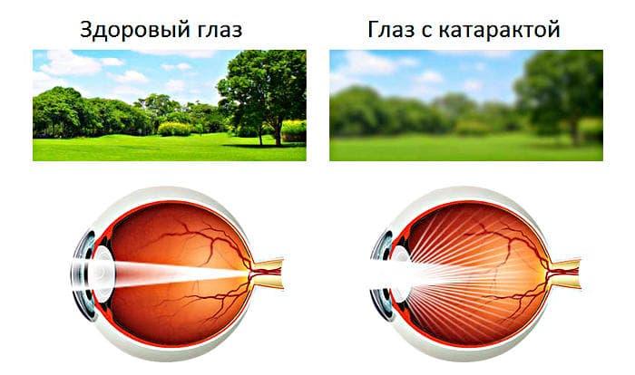 Симптомы катаракты глаза (помутнения хрусталика)